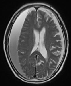 s-慢性硬膜下血腫