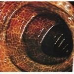 大腸メラノーシス(大腸黒皮症)
