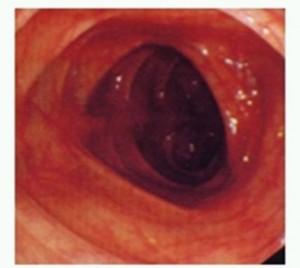通常の大腸粘膜