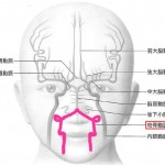椎骨動脈低形成について