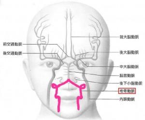 脳血管1VA