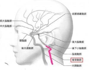 脳血管2VA